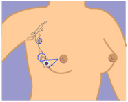 Breast India, Cancer India, Treatment India, Breast Cancer Information India