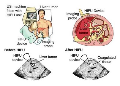 Hifu Cancer Treatment Mumbai India,Hifu Treatment Liver Cancer India, High Intensity Focused Ultrasound (Hifu), New Software, Non-Invasive Prostate Treatment, Prostate Cancer, Hifu Treatment Liver Cancermumbai India, Radical Surgery, Incontinence, Impotence, Hormonal Treatment, Sexual Ability, Liver Cancer, Hepatocarcinoma, Hifu Treatment Liver Cancer Delhi India, Liver Cancer Treatment , Alternative Liver Cancer Treatment, Hifu, Hifu Cancer Treatment, Hifu Private Patient Hospital, Hifu Treatment, Hifu Treatment Liver Cancer Kolkata India, Liver Cancer Therapy, Alternative Liver Cancer Therap