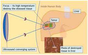 Hifu Cancer Treatment Mumbai India,Hifu Treatment Pancreatic