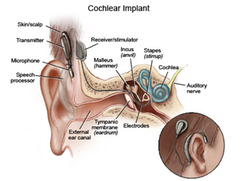 Cochlear Implant Surgery, Cochlear Implant, Health, Bionic Ear, Electronic Device