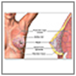 Breast Biopsy Surgery India, Breast Biopsy Surgery Mumbai India