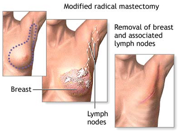 Mastectomy Surgery India offers info on Best Price Surgery Hospital India-Mastectomy India, Radical Mastectomy Surgery Delhi India