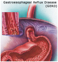 Reflux Surgery India, Reflux offers info on Reflux Surgery India, Reflux Disease India, GERD India, Symptoms Of Reflux Surgery India