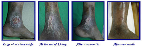 Varicose Ulcer Treatment India, Cost Varicose Ulcer Treatment India