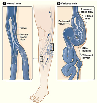 Varicose Vein Removal Surgery offers info on Varicose Vein Removal India, Vein Surgeon India, Varicose Vein India