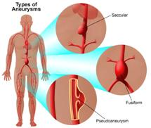 Aneurysm Repair Surgery, Vascular Surgeon, Thoracic Aneurysms