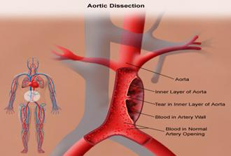 Aneurysm Surgery India, Thoracic Aneurysms, Surgical Aneurysm Repair