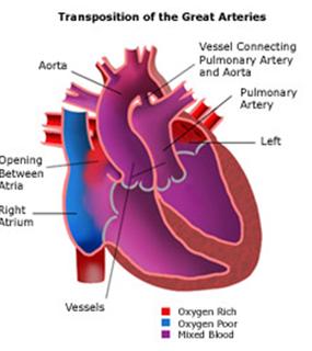 Child heart surgerychild heart surgery indiachild open heart surgery child heart surgery india child open heart surgery mini invasive ccuart Images