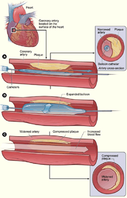 Angioplasty Surgery, Angioplasty Surgery India
