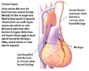 India CABG Surgery, Bypass Graft Surgery India Coronary Artery