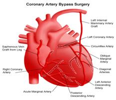 Coronary Artery Bypass Surgery, Bypass Graft Surgery India Coronary Artery, Heart Attack