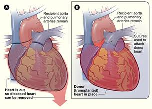 Heart Transplant Surgery, Support, Parents, Information
