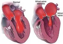 Mitral Valve Replacement Surgery, Mitral Valve Repair India