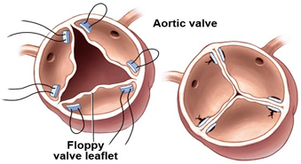 Aortic Valve Replacement - procedure, blood, complications, adults ...