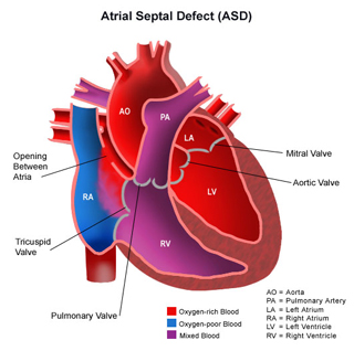 Atrial Septal Defect Surgery India, Atrial Septal Defect, ASD, Pediatric, Heart, Septum