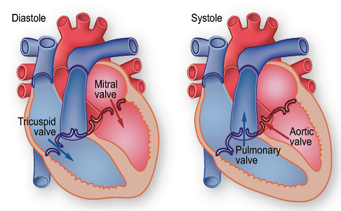 Valve Repair, Valve Repair Surgery India, Low Cost Surgery, Affordable Surgery