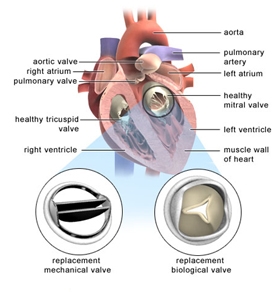 Valve Replacement India, Aortic Valve Replacement, Cardiac Bypass Surgery