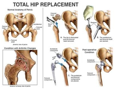 Cemented Total Hip Replacement, Cemented Total Hip Replacement in India, Cementless Hip Replacements