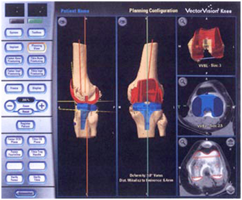 Computer Assisted Hip Replacement Surgery India, Hip Replacement