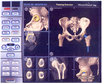 Computer Assisted Hip Replacement Surgery, Computer Assisted Hip Replacement Surgery India, Computer Assisted Hip Replacement Surgery abroad