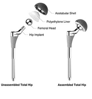 Computer Navigation Hip Replacement, acetabular Component Position, Computer Navigation