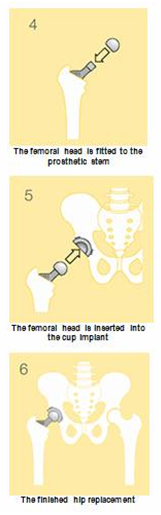 Computer Navigation Hip Replacement, Computer Navigation assisted Hip Replacement India, Computer Navigation