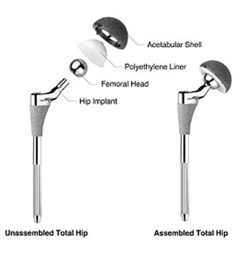 Hip Replacement Surgery India, Hip Replacement India, Hip Fracture Treatment