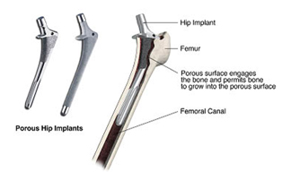 Hip Replacement India, Joint, Joint Disease, Hip Replacement, Hip Arthroplasty, Hip Joint