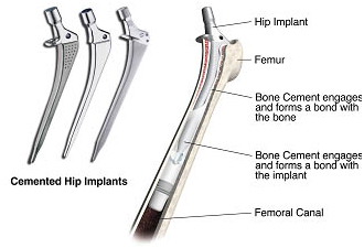 Hip Replacement Surgery India, Hip Replacement, Hip Arthroplasty, Hip Joint, Hip Fracture Treatment