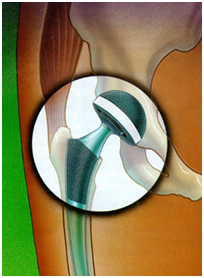 Total Hip Replacement Surgery, Hip Surgery India, Virtual Surgery, Total Hip Replacement