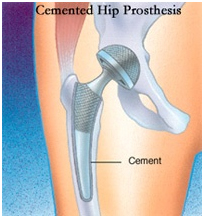 Hip Surgery India, Total Hip Replacement, THR, Exercises
