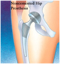 Total Hip Replacement Surgery, Hip Replacement Surgery, Exercises, Operation