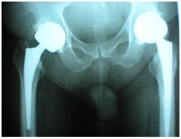 Birmingham Hip Replacement India, Hip Resurfacing, Hip Resurfacing India
