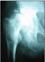 Hip Replacement Hospital India, Hip Replacement In India, Hip Resurfacing India, Hip Replacement India