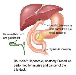 India Liver Disease, Endoscopy India, Gastroenterology India