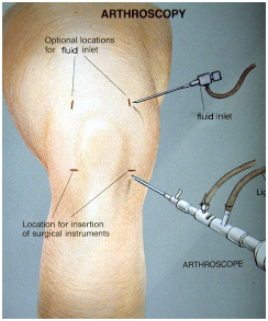 Arthroscopic Meniscectomy Surgery India, Arthroscopic