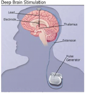 Deep Brain Stimulation Surgery India Offers info on Stimulation India, Stimulating India