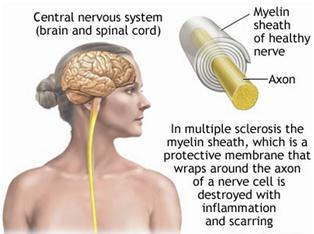 paralysis brain bleeding facial sclerosis Multiple