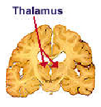 halamotomy Surgery India Offers info on Thalamotomy India, Thalamotomy Surgery India, Brain And Nerves India
