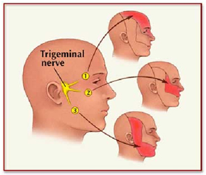 Trigeminal Neuralgia India Offers info on Trigeminal Neuralgia Treatment India, Trigeminal India, Neuralgia India