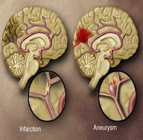 Cerebral Aneurysm Treatment India Offers info on Cerebral Aneurysm India, Brain Aneurysm India