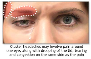 Cluster Headache Surgery India Offers info on Cluster Headache Surgery India, India Cluster India