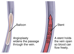 Venous Angioplasty Surgery Low Cost In India, Venous Angioplasty Surgery, Venous Angioplasty Surgery Mumbai India, Venous Angioplasty Surgery India, Venous Angioplasty Surgery Hyderabad India, Angioplasty, S Venous Angioplasty Surgery symptoms, Venous Angioplasty Surgery Related Symptoms, Venous Angioplasty Surgery Kolkata India, Signs, Signs And Symptoms