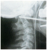 Anterior Transoral Approach, Spine Care India, Upper Cervical Spine