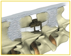 DIAM Spinal Stabilization Surgery, Dentistry, DIAM, Device For Intervertebral Assisted Motion, Lumbar Spine