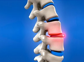 Herniated Disc Surgery India, Herniated Disc Replacement Surgery India
