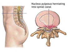 Spinal Stenosis Surgery, Spinal Stenosis Surgery, Cervical Stenosis