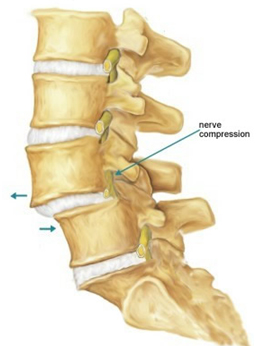 spondylolithesis symptoms This sliding of one vertebra on another is called spondylolisthesis  seen with  degenerative spondylolisthesis and is a cause for the many symptoms seen with .