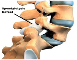 Spondylosis Surgery, Spondylosis,  Surgery For Cervical Spondylosis, Spondylosis Treatment India, Treatment Of Spondylosis
