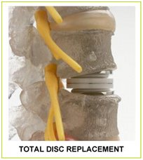 Total Disc Replacement, Disc Replacement Surgery, Spinal Fusion